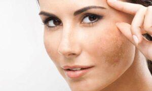 از بین بردن لکه های پوستی با مواد طبیعی