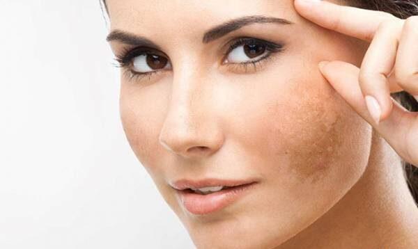 چگونه لک صورت را درمان کنیم رفع جای جوش و جای زخم و لک مک کک ۳